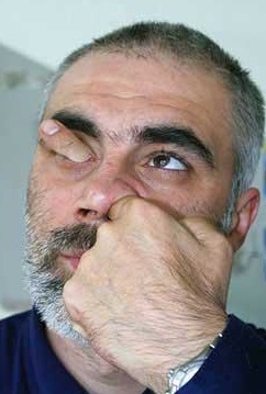 nose_picking2